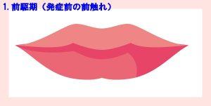 口唇ヘルペス1