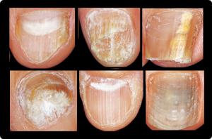 爪水虫症例