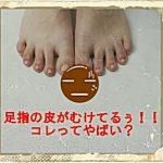 足指の皮がむける!知らないとヤバイ原因3つとポイント