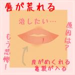 唇が荒れる6つの原因とは?治すための改善方法も教えます!