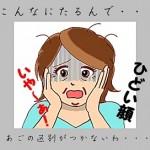 あご(下あご)のたるみは顔全体がたるんでいるかも、原因を押えてスッキリ解消しちゃいましょう!