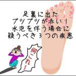 足裏に出たブツブツが赤い!水泡を伴う場合に疑うべき3つの疾患